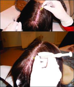 Mezoterapia injectabila